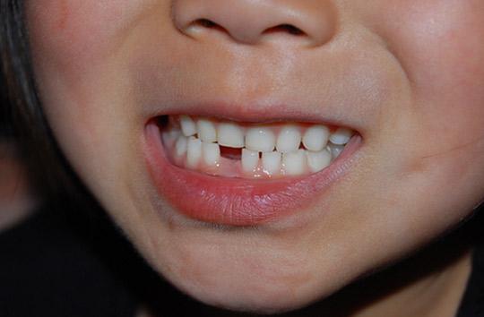 『わが子の「乳歯」を捨ててはいけない!?』