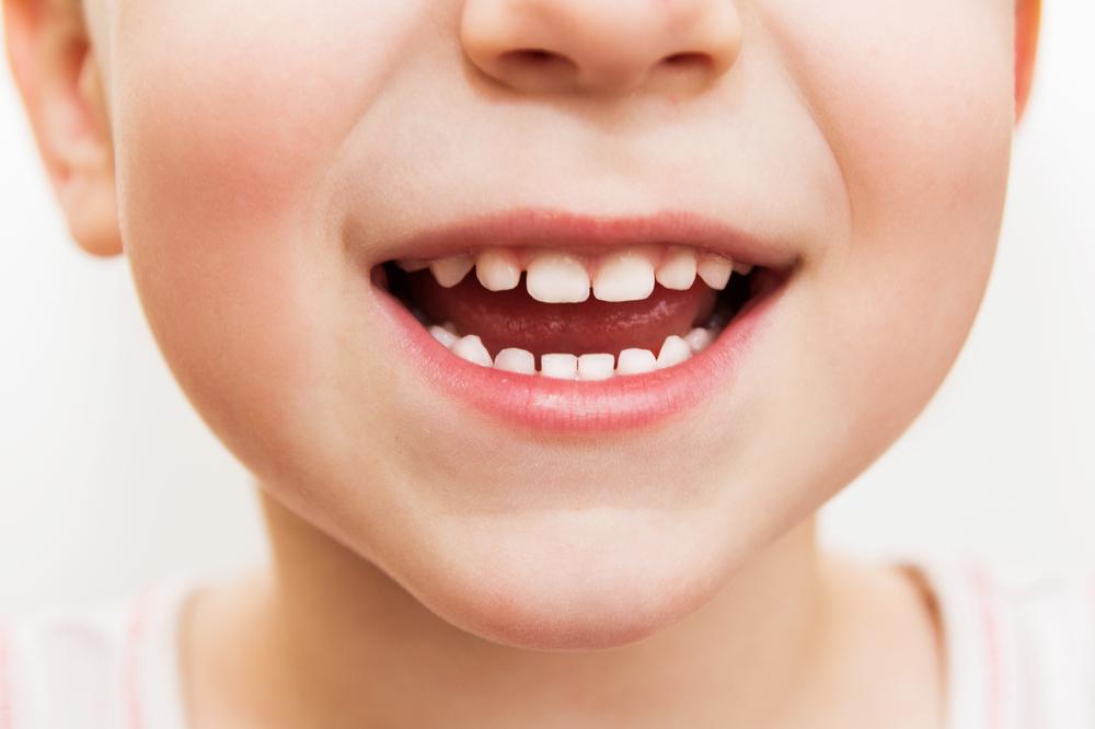 幼児の歯の生え変わりっていつ?時期や抜ける順番、注意点とは