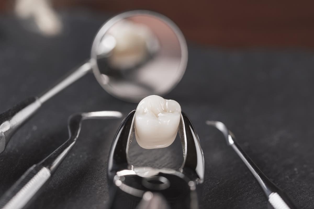 【歯の矯正】抜歯が必要となる理由は?抜歯を伴う歯列矯正の方法