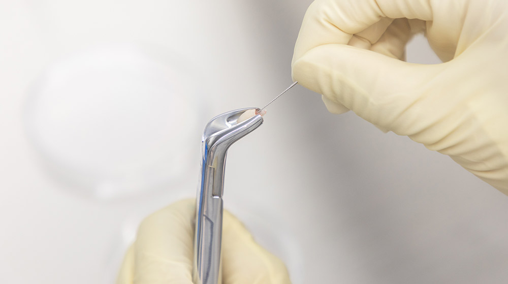 抜けた乳歯の新たな保存方法
