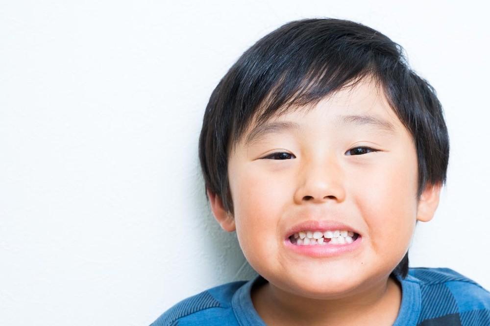 乳歯がなかなか抜けない主な原因