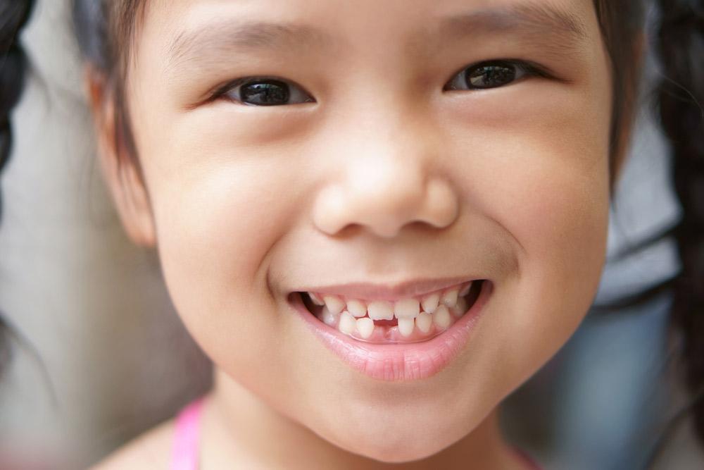 抜き方の基本、乳歯を抜くのは生え変わり適齢期に入ってから