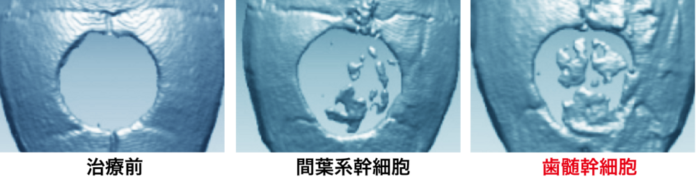 幹細胞によるマウス頭蓋骨での骨再生能力比較